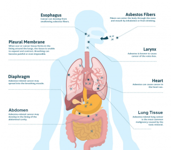 Diagram showing how asbestos exposure affects the body
