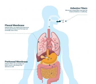 How asbestos exposure causes mesothelioma