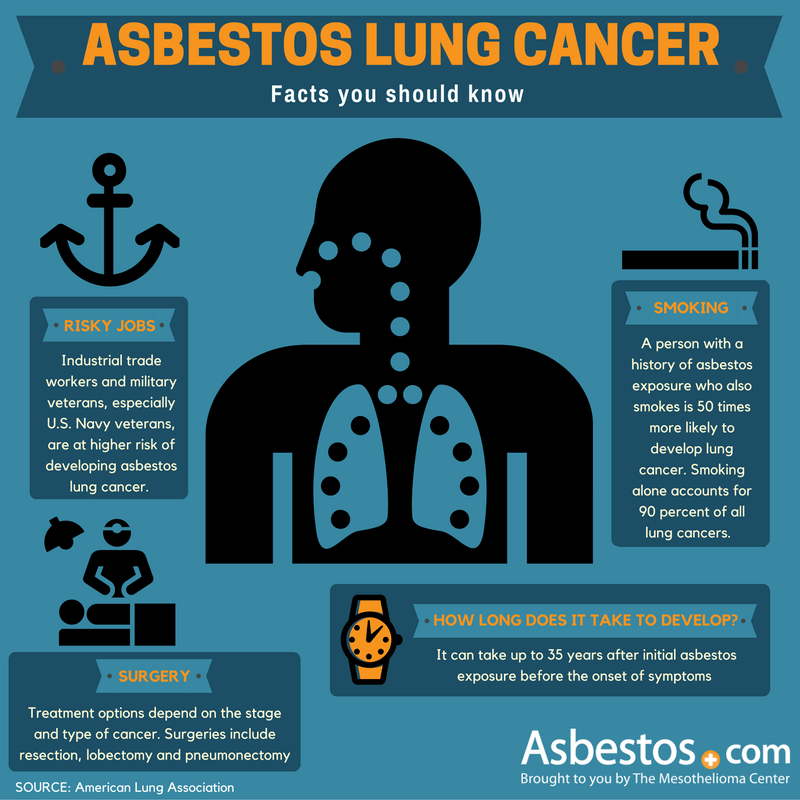 10 Questions About AsbestosRelated Lung Cancer