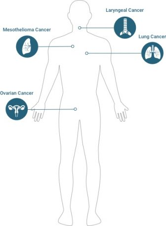 Diagram of known asbestos cancers: mesothelioma, lung cancer, laryngeal cancer, & ovarian cancer