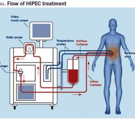 HIPEC diagram