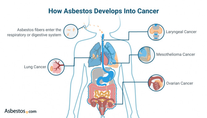 How asbestos develops into different types of cancer