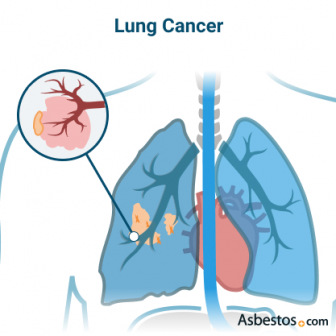 Cancer forming on the air sacks inside the lung.