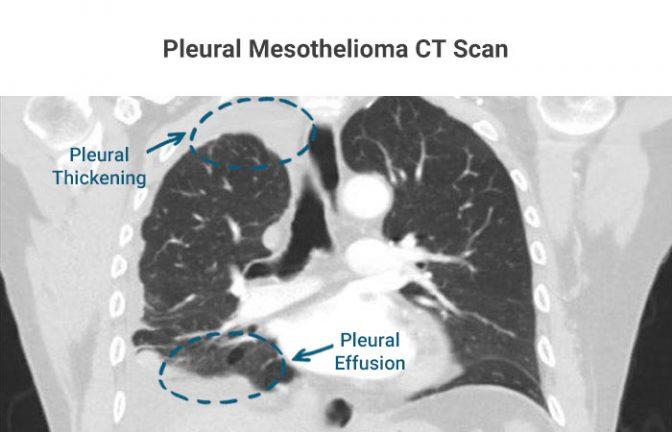 Pleural Mesothelioma CT Scan