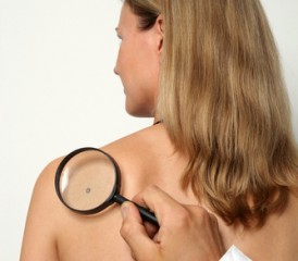 Man holding a magnifying glass and looking at a mole on woman's back