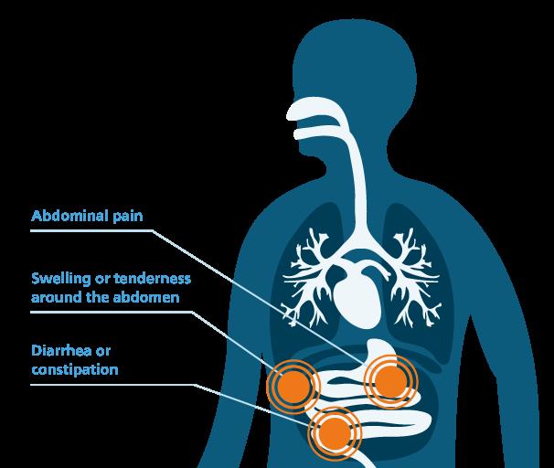 Symptoms of peritoneal mesothelioma graphic
