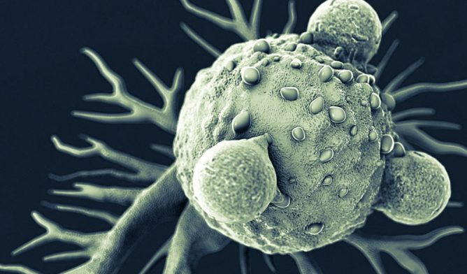 T lymphocytes and cancer cell