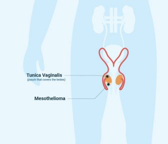 Diagram showing the location of testicular mesothelioma