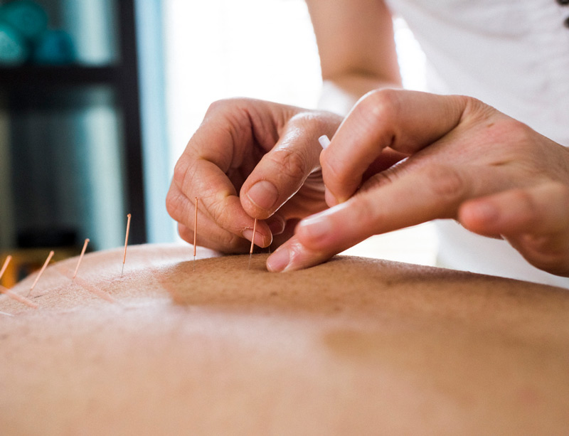 Acupuncture: Treating Mesothelioma Through Mind, Body & Spirit