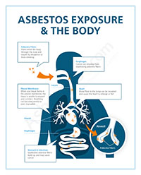 Asbestos Exposure Risks In Occupations Products Amp Jobsites