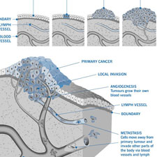 Progression of mesothelioma tumor formation