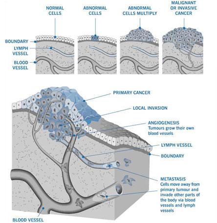 cancer body diagram mesothelioma & asbestos images, diagrams & graphs