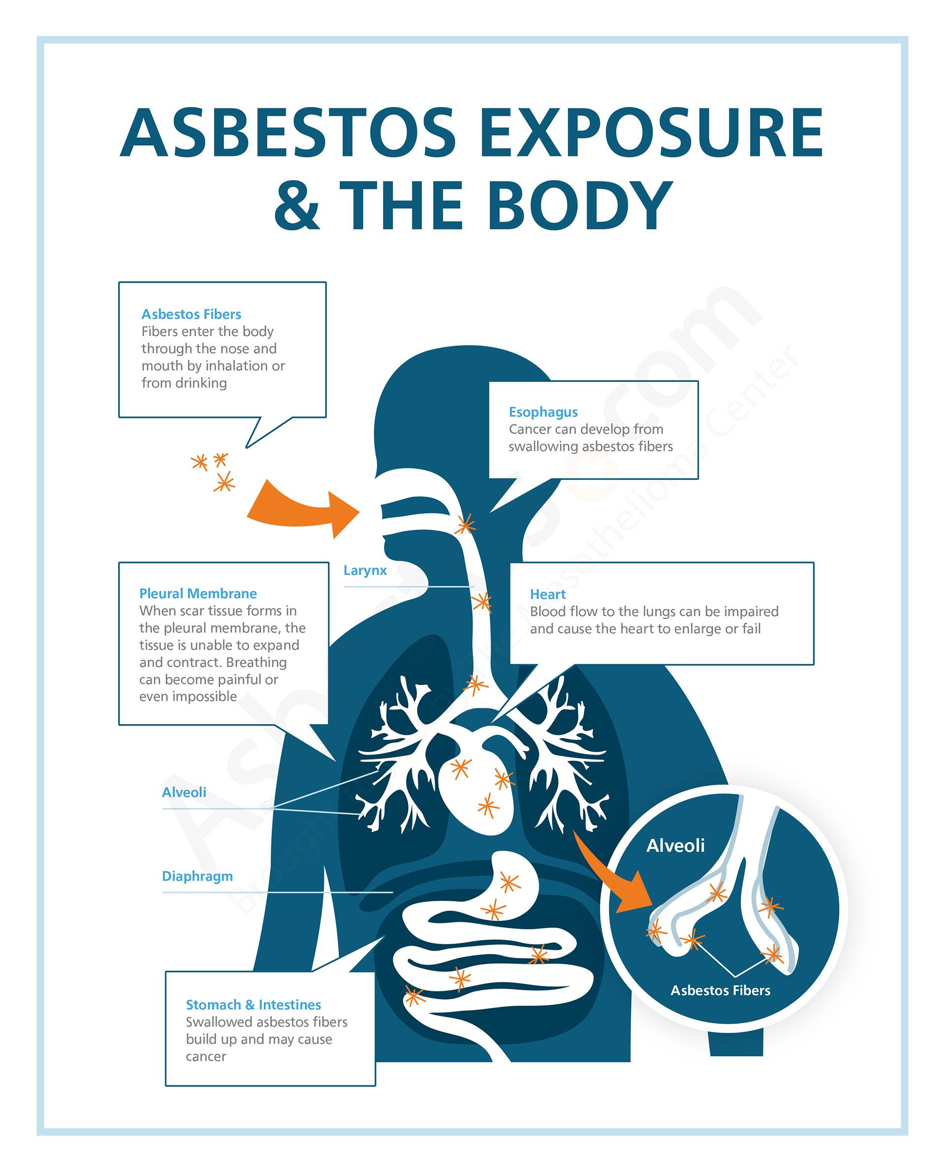 Diagram Of Breathing In Asbestos Fibers : Asbestos exposure risks in occupations products jobsites