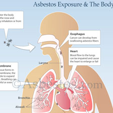 Asbestos Exposure Diagram Thumb