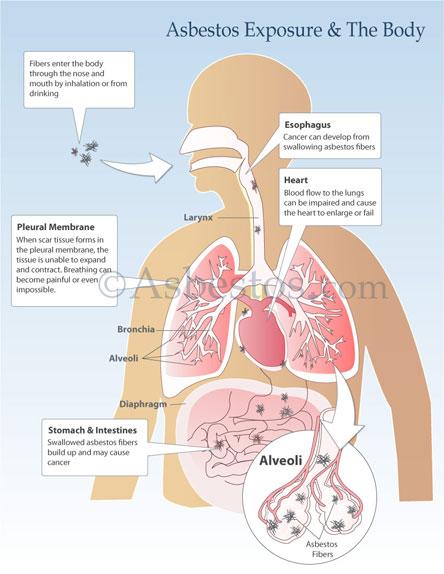 Asbestos In The Body Diagram
