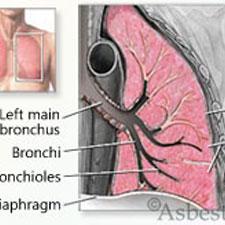 Asbestos lung diagram