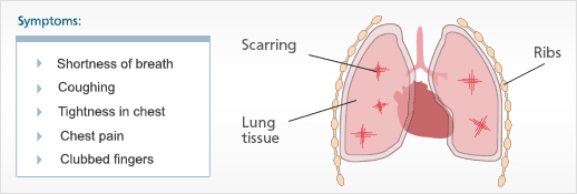 Asbestosis and Asbestosis Symptoms