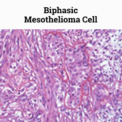 Biphasic mesothelioma cells under a microscope.