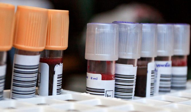 Blood samples in tubes