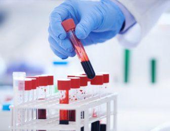 Lab test for cancer