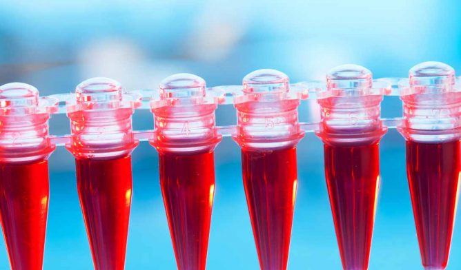Blood vials in a laboratory