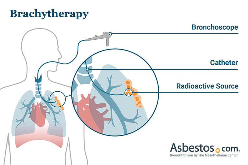 Mesothelioma Treatment Surgery Chemotherapy And Radiation Therapy