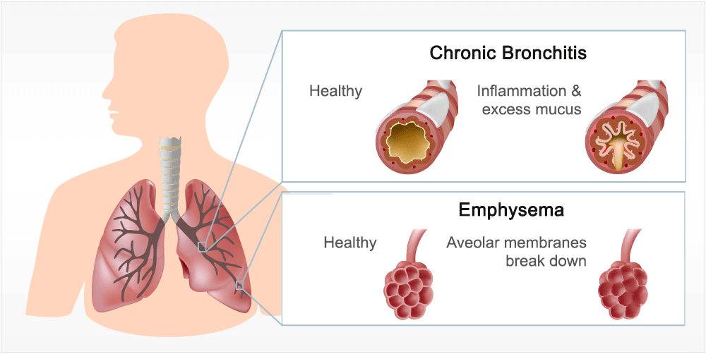 how to tell if you have chronic bronchitis