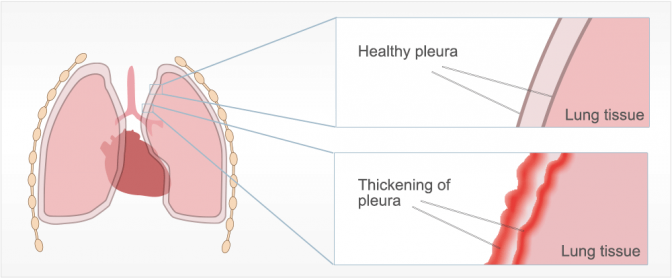 Diffuse Pleural Thickening