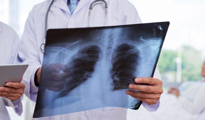 Doctors examining chest X-ray