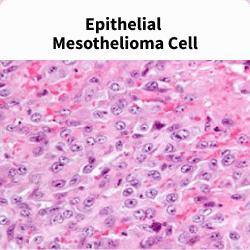 Epithelial mesothelioma cells under a microscope.