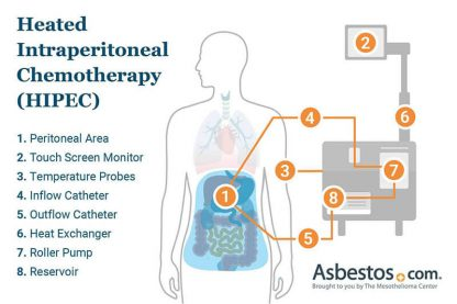 Heated Intraperitoneal chemotherapy (HIPEC) treatment for peritoneal mesothelioma