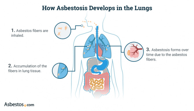 Asbestosis developing in the lungs