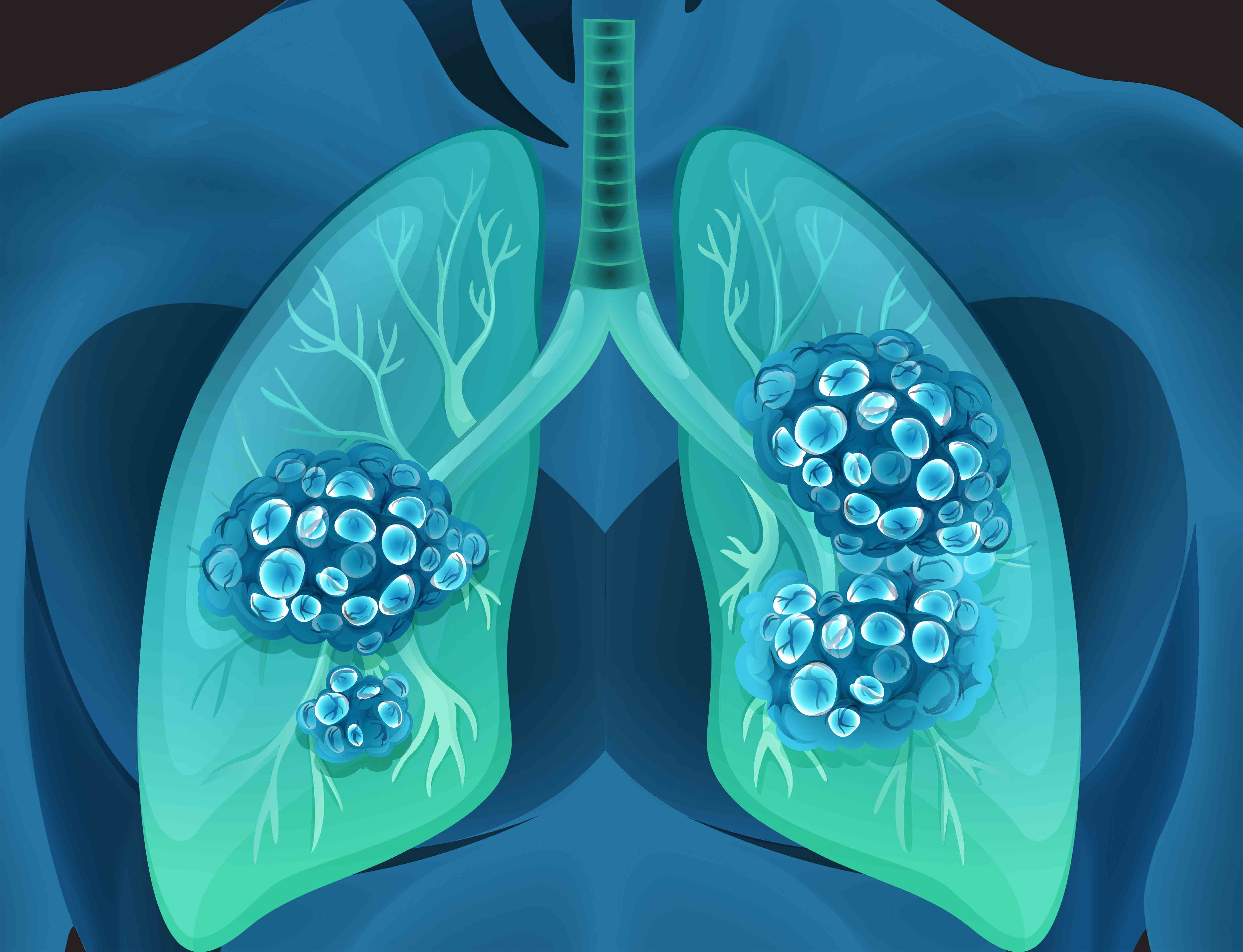 Lung cancer in human body