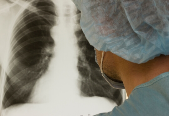 Masked technician looking at lung X-ray