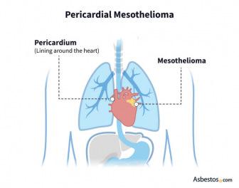 Pericardial Mesothelioma diagram