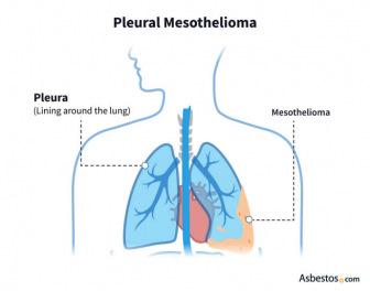Pleural Mesothelioma diagram
