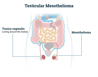 Testicular Mesothelioma, the type of mesothelioma affecting the testes