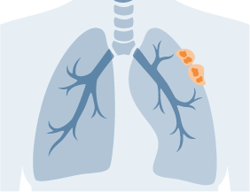 Mesothelioma cancer localized to small area of lung
