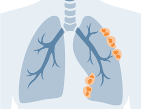 Mesothelioma cancer spreading through lung