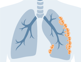 Mesothelioma cells spreading to lymph nodes