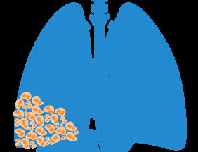 Mesothelioma tumor forming in mesothelium