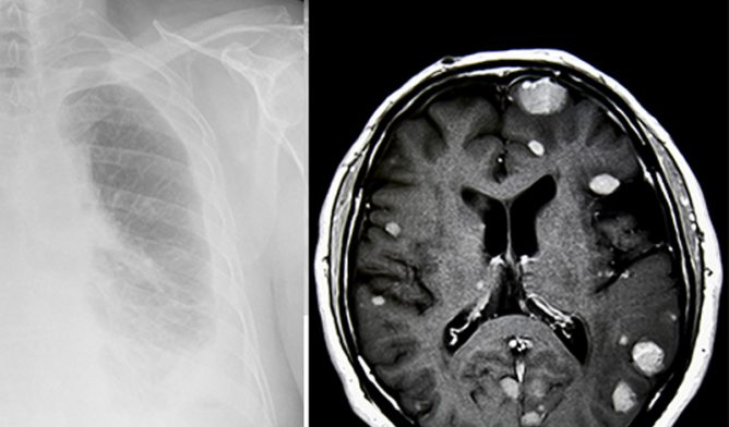 Mesothelioma in lung and brain tumors