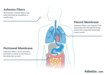 Diagram showing how asbestos develops into pleural and peritoneal mesothelioma