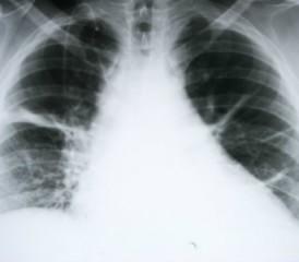 X-ray of mesothelioma