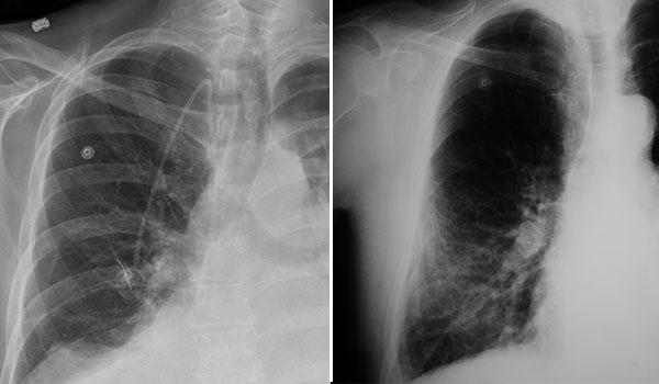 x-ray of mesothelioma vs pneumonia