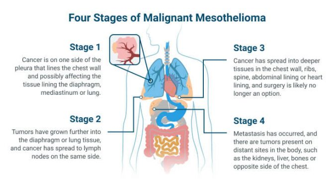 The 4 stages of mesothelioma explained