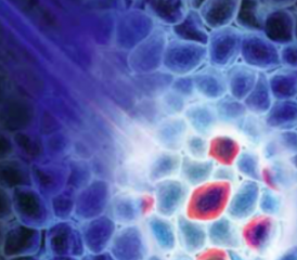 PDD Light Cancer Cells