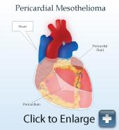 Diagram of pericardial mesothelioma