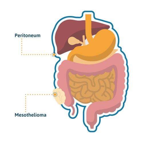 Stage 4 Lung Cancer >> Peritoneal Mesothelioma: Causes, Treatment & Survival Rates