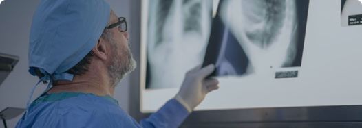 Doctor reviewing chest X-rays of a patient